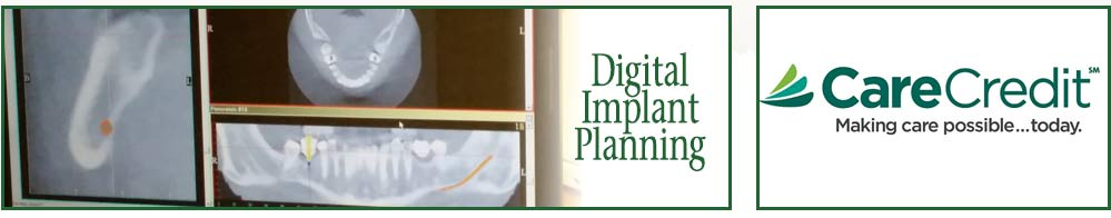 Digital Planning for tooth implant